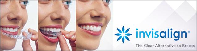 Invisalign Full Dream Smile Dental Clinic
